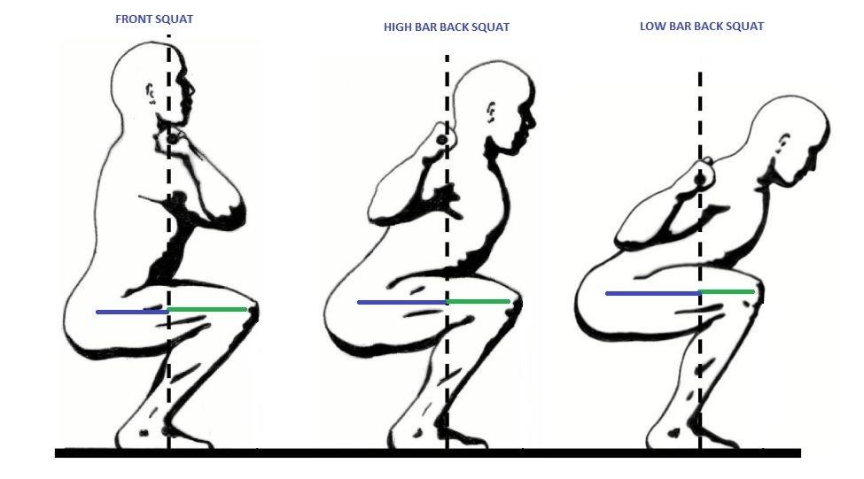 10 Methoden gegen Rückenschmerzen nach Kniebeugen