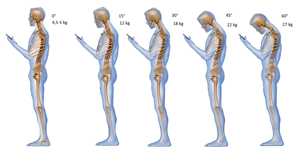 Nacken Fehlhaltung korrigieren-Übungen gegen vorgestreckte Kopfhaltung