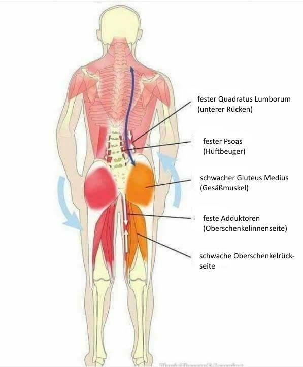 Beckenschiefstand korrigieren - Übungen gegen ein schiefes Becken