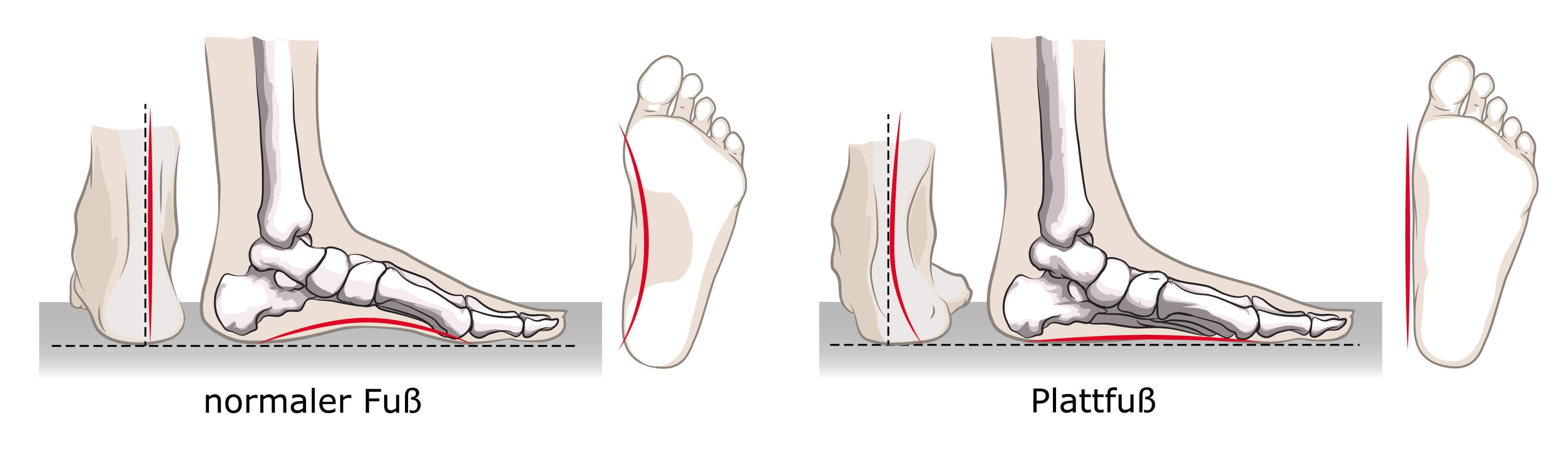 Plattfüße aufrichten - Übungen für ein stabiles Fußgewölbe