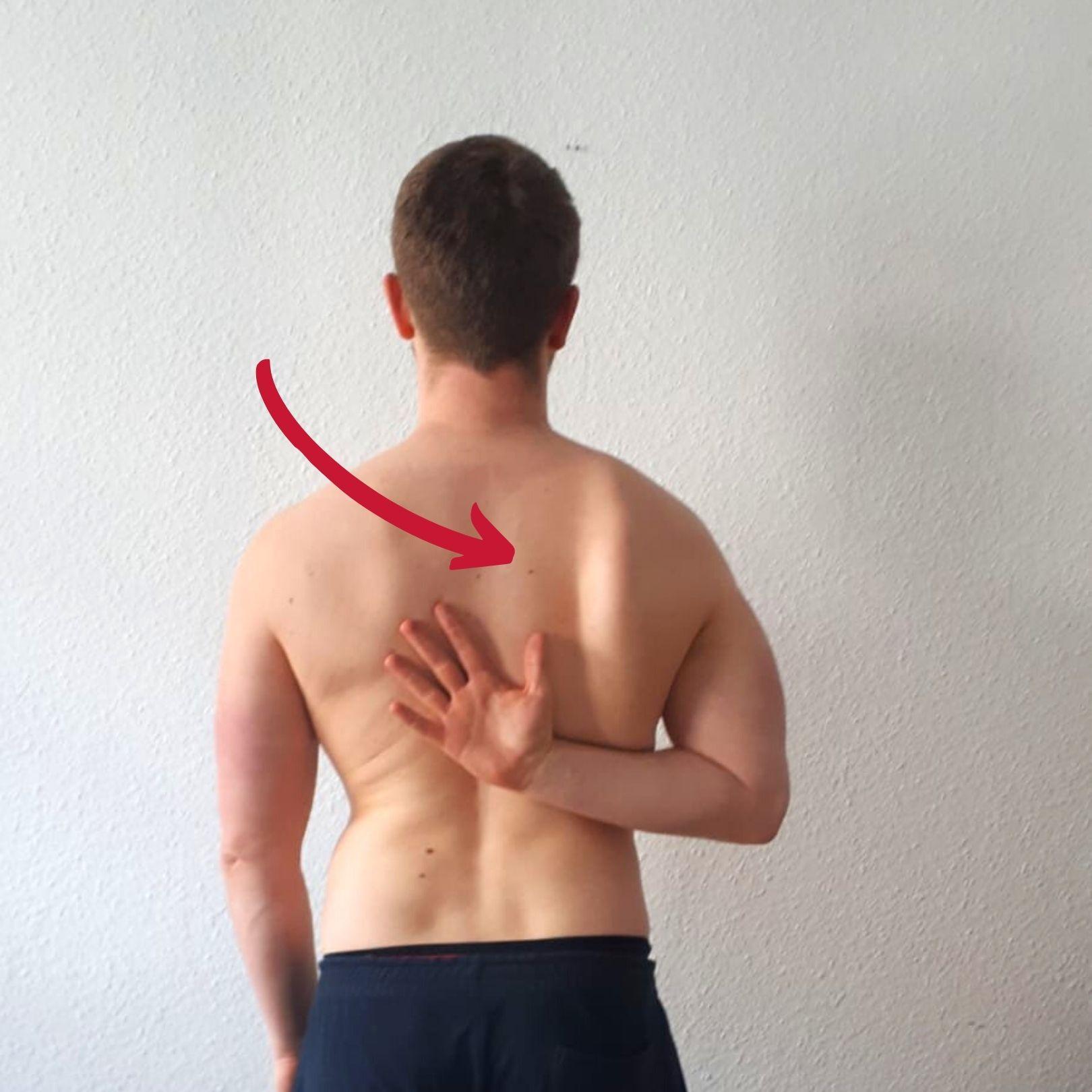 Selbsttest abstehende Schulterblätter